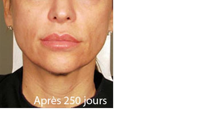 rajeunir le visage sans chirurgie avec l 39 ultherapy ultherapy paris. Black Bedroom Furniture Sets. Home Design Ideas