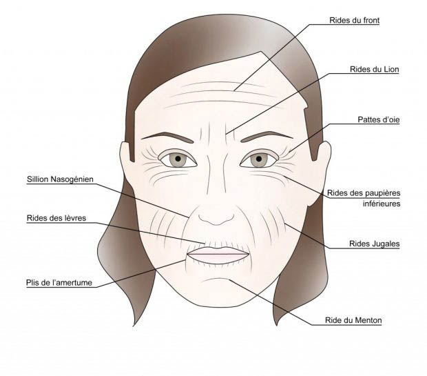 les rides du visage ultherapy ultraformer