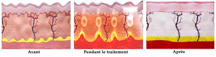 Création de coagulation de 65 à 75 C˚ d'énergie à ultrasons focalisés de haute intensité (HIFU). Aucun dommage sur la zone environnante et la surface de la peau.