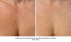 Traitement ultherapy : tonifier la peau du décolleté sans chirurgie