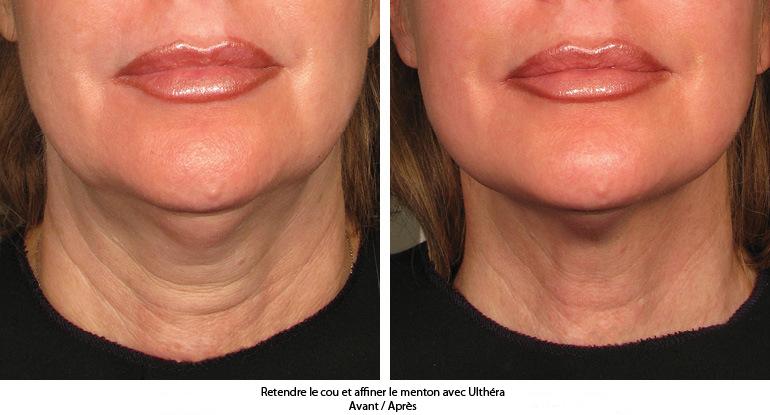 avec ultherapy retendre la peau du cou et du menton sans chirurgie