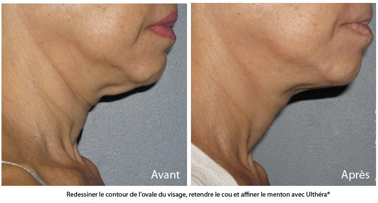 L'ovale du visage redessiné avec le traitement ultherapy