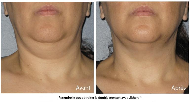 Rajeunir le cou et le menton sans chirurgie avec le traitement Ulthérapy