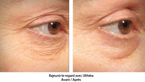 Rajeunir le visage lifting sans chirurgie avec l'Ulthérapy