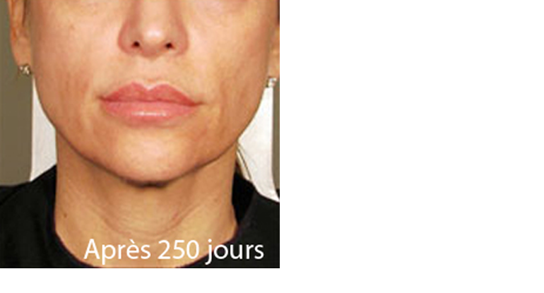Rajeunir l'ovale du visage sans chirurgie centre ulthérapy Paris