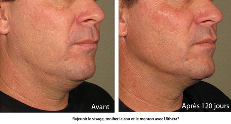 Avec l'ulthérapy, rajeunir le visage sans chirurgie