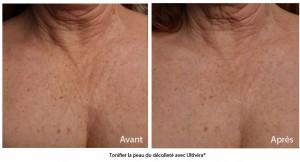Tonifier la peau du décolleté | sans chirurgie avec l'Ulthérapy
