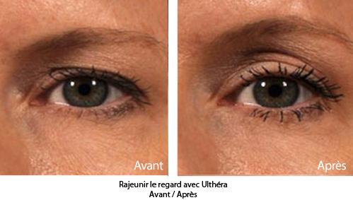 lifting et rajeunissement du visage sans chirurgie ultherapy