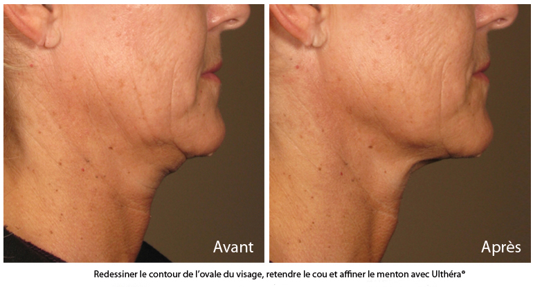 lifting ovale visage sans chirurgie traitement ultherapy