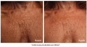 Raffermir et tonifier la peau du décolleté grâce à l'Ulthérapy