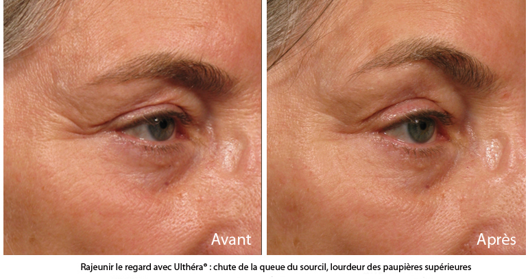 Traitement ultherapy : linfting sans chirurgie