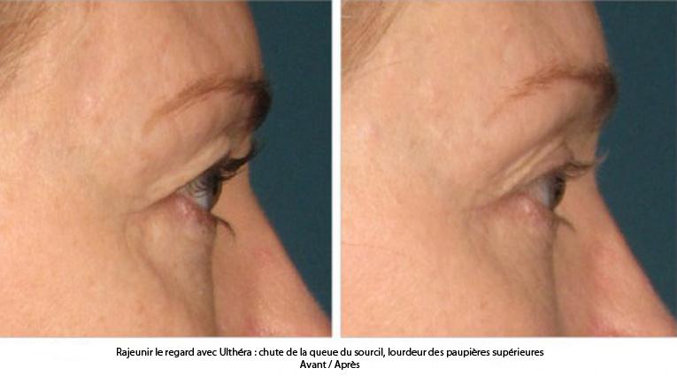 lifting du visage sans chirurgie avec ultherapy paris