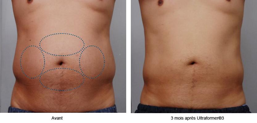 Relâchement cutané | Retendre la peau sans chirurgie avec l'Ulthérapy