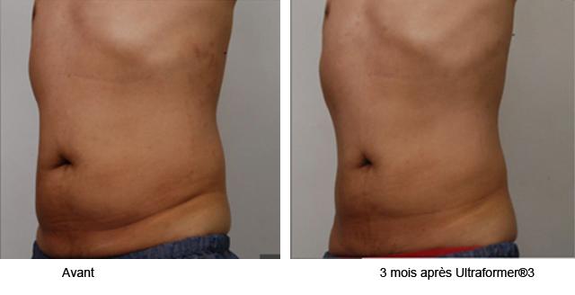 traitement ulthérapy lifting médical sans chirurgie peau ventre